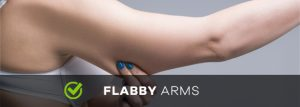flabby arms