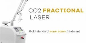 fractional co2 laser acne scars singapore