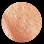carbon laser peel enlarged pores