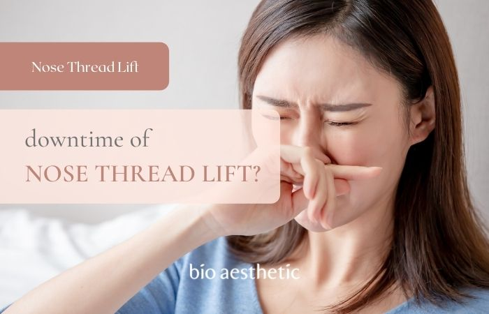 nose thread lift downtime