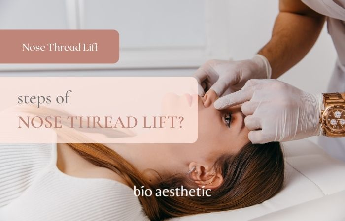 steps of nose thread lift procedure