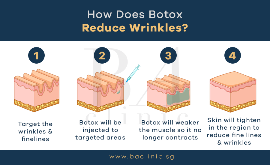 how does botox reduce wrinkles