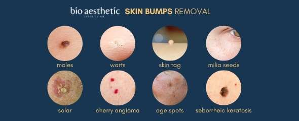 how are moles formed?