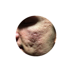 Rolling deep acne scars subcision