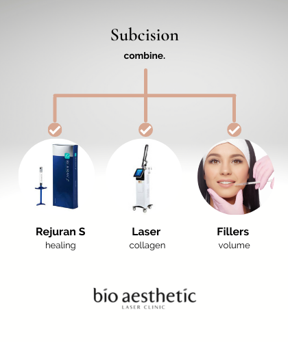 what acne scar treatment can be combined with subcision