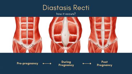 how does diastasis recti happen?