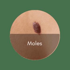 singapore bio aesthetic laser clinic remove moles