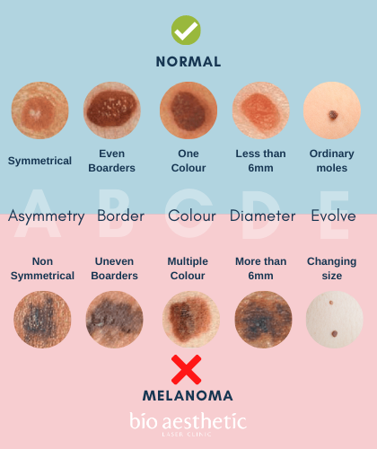is my mole cancerous? mole removal
