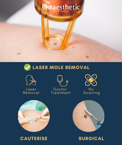mole removal singapore bio aesthetic laser clinic laser mole removal benefits