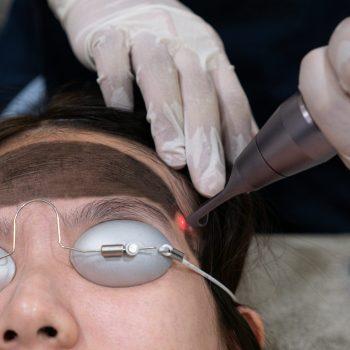acne treatment - carbon laser peel