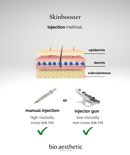 how is skinbooster injected?