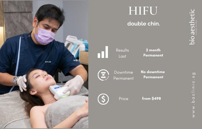 hifu double chin