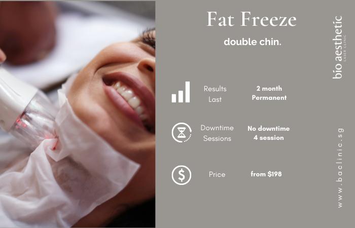 fat freeze double chin
