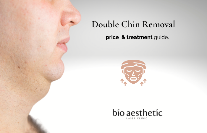 how to get rid of double chin bio aesthetic