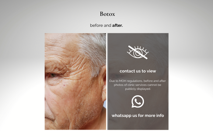 botox price - botox before and after