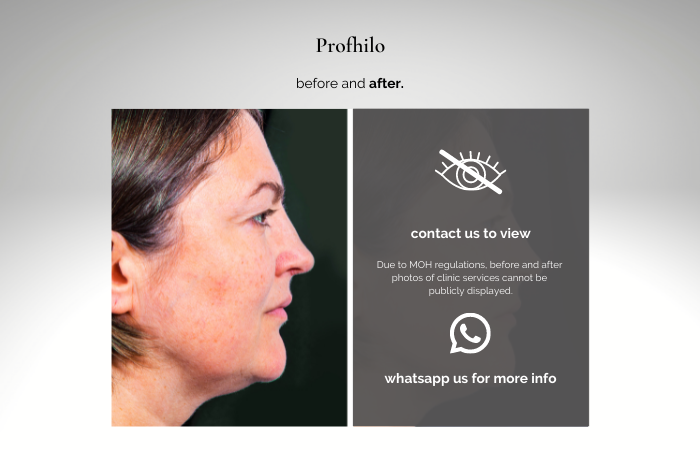 profhilo before and after