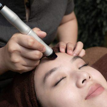 acne treatment - hydrafacial peel