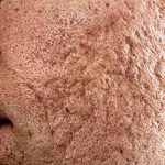 Severe acne scars removal singapore