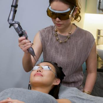 acne treatment - q switch laser