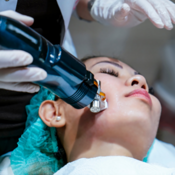acne treatment - rf microneedling