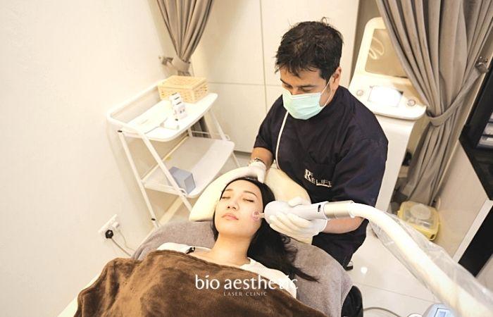 acne scars treatment singapore bio aesthetic laser clinic