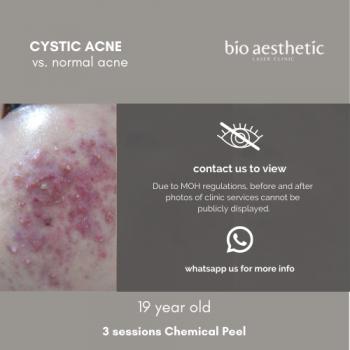 cystic acne treatment chemical peel