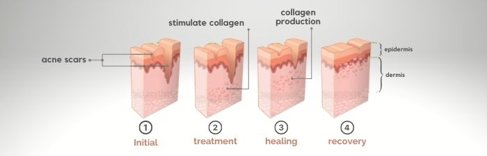how long does it take for acne scars to fade? acne scars removal