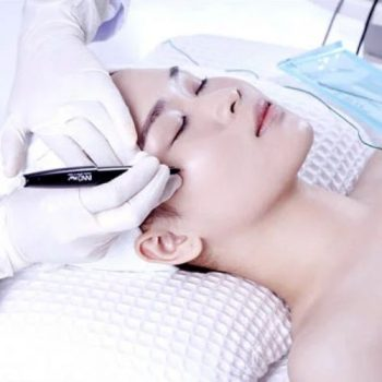 innoplus for cystic acne treatment