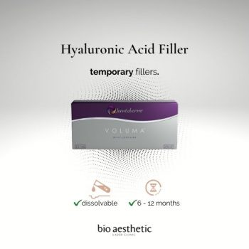 cheek fillers - hyaluronic acid fillers