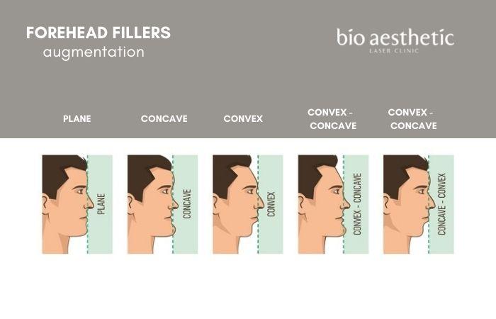 forehead augmentation filler