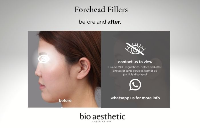 forehead filler before and after