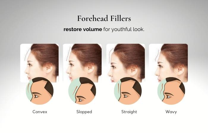 forehead filler - types of forehead